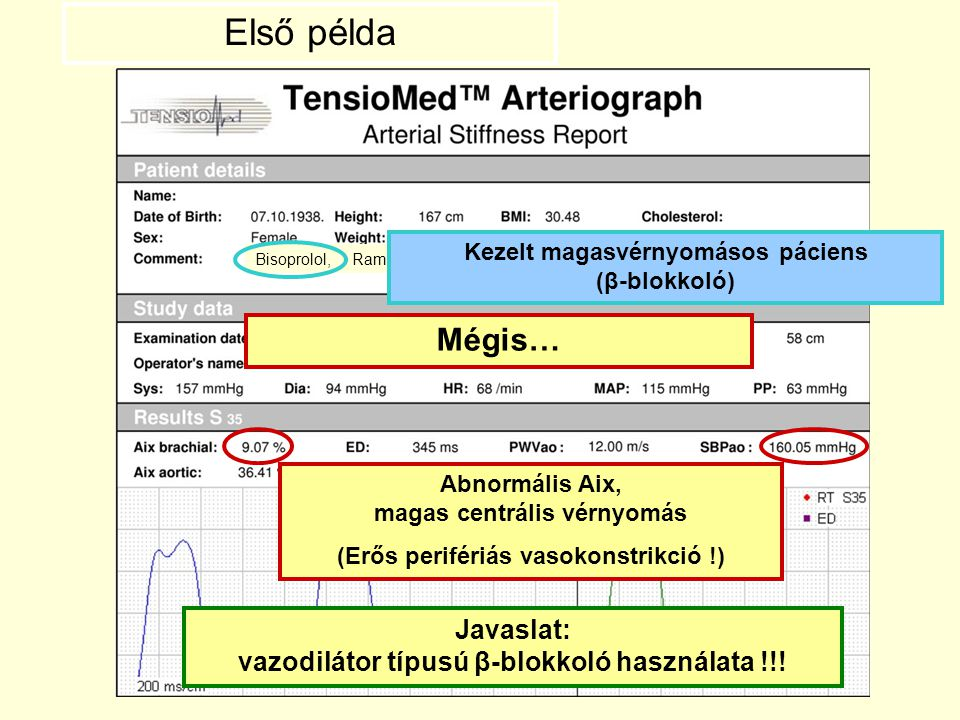 Első példa Bisoprolol, Ramipril. Kezelt magasvérnyomásos páciens (β-blokkoló) Mégis… Abnormális Aix, magas centrális vérnyomás.