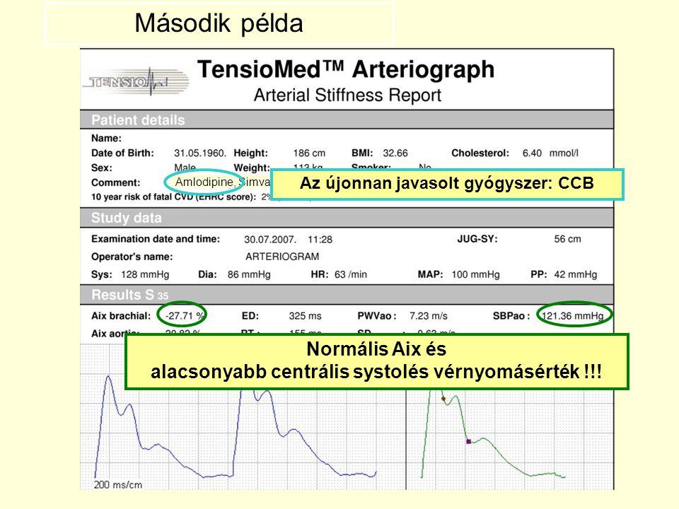 Második példa Amlodipine, Simvastatin. Az újonnan javasolt gyógyszer: CCB.