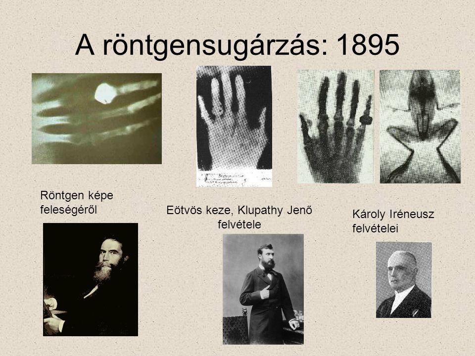 Eötvös keze, Klupathy Jenő felvétele