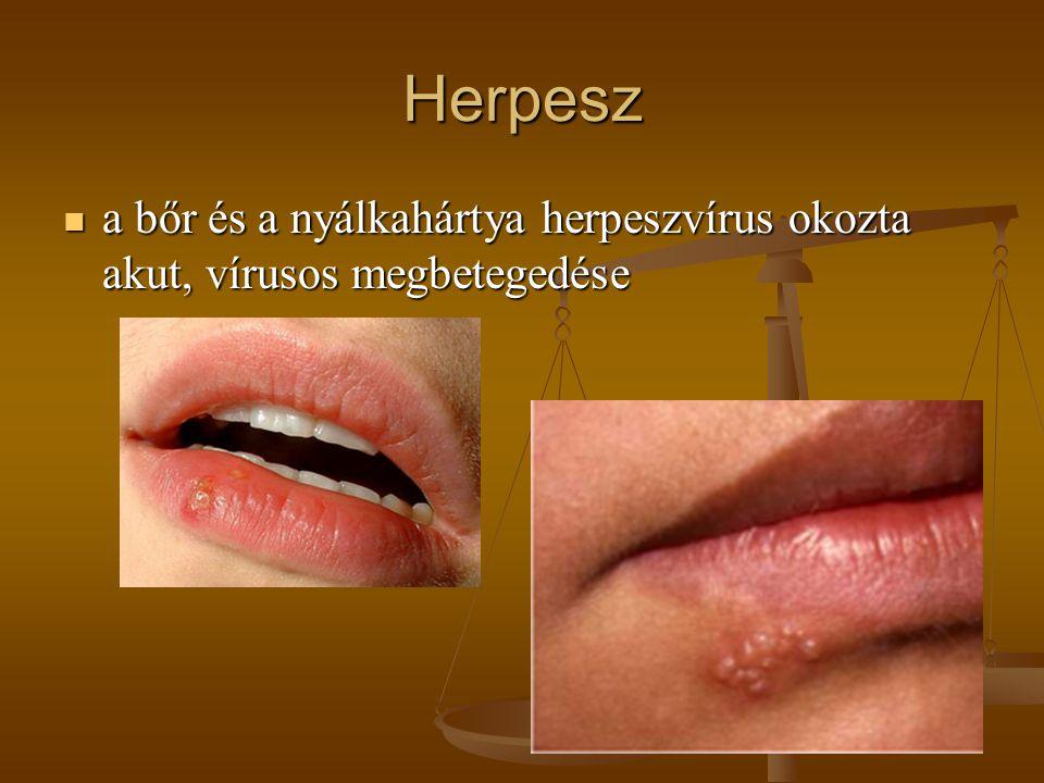 Herpesz a bőr és a nyálkahártya herpeszvírus okozta akut, vírusos megbetegedése