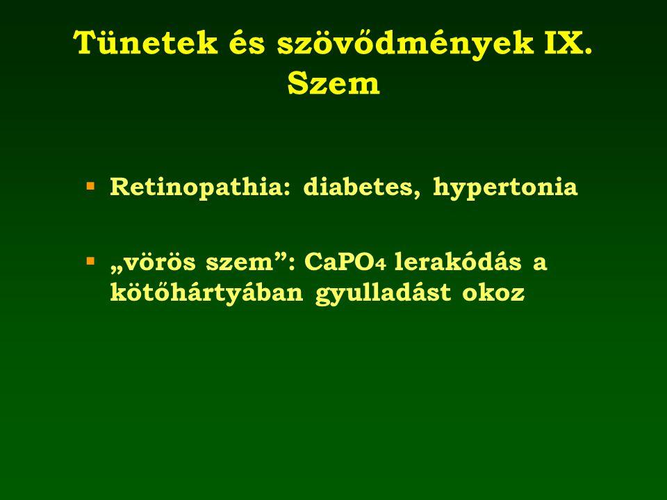 Tünetek és szövődmények IX. Szem