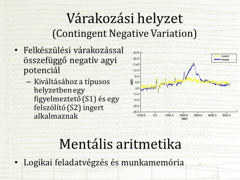 Várakozási helyzet (Contingent Negative Variation)