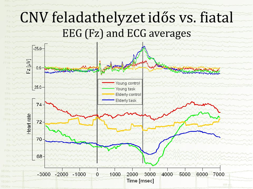 CNV feladathelyzet idős vs. fiatal EEG (Fz) and ECG averages