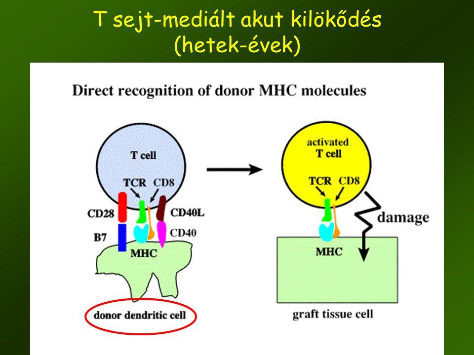 T sejt-mediált akut kilökődés (hetek-évek)