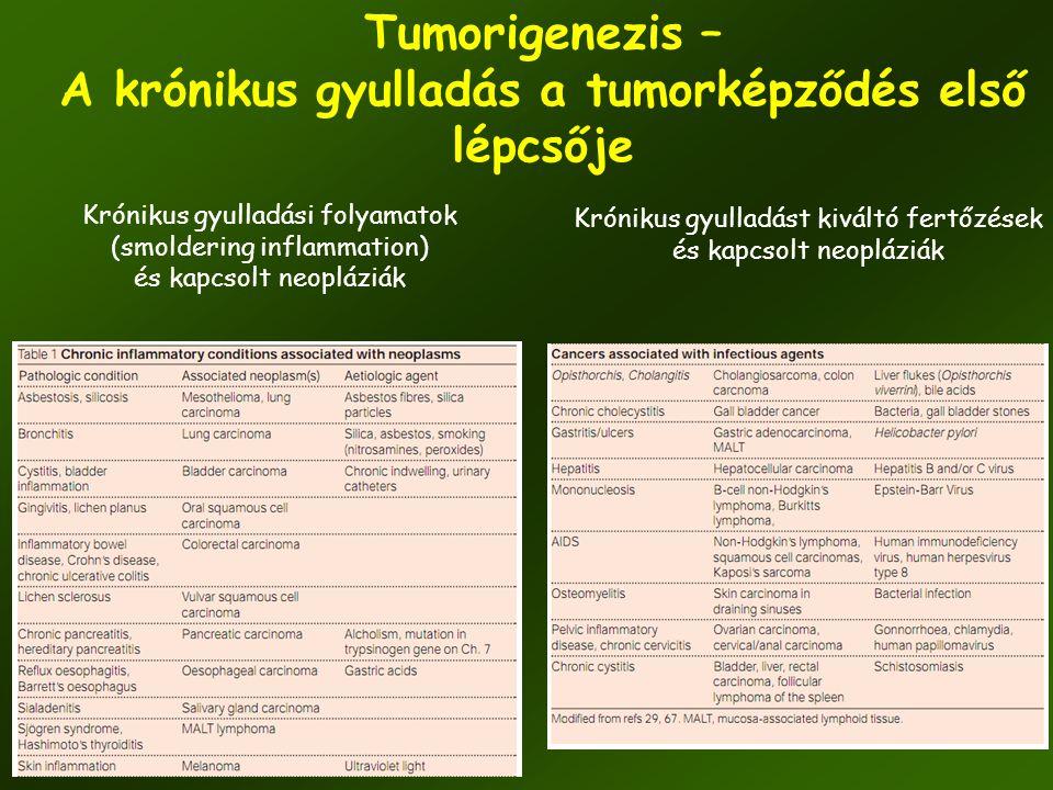 Tumorigenezis – A krónikus gyulladás a tumorképződés első lépcsője