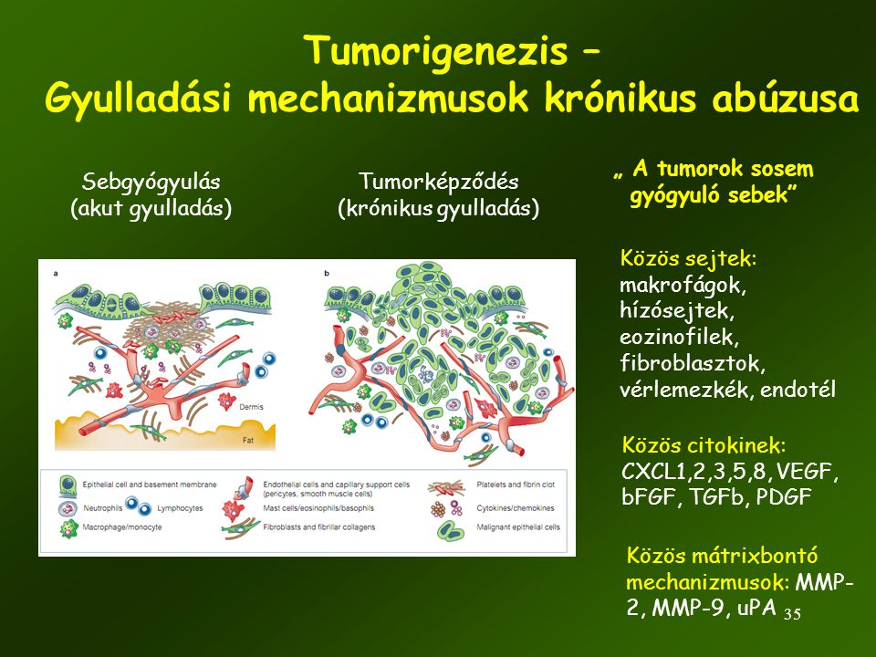 Tumorigenezis – Gyulladási mechanizmusok krónikus abúzusa