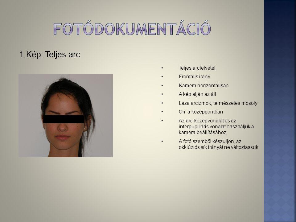 fotódokumentáció 1.Kép: Teljes arc Teljes arcfelvétel Frontális irány