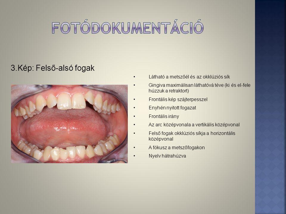 fotódokumentáció 3.Kép: Felső-alsó fogak