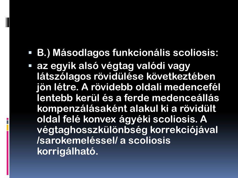 B.) Másodlagos funkcionális scoliosis: