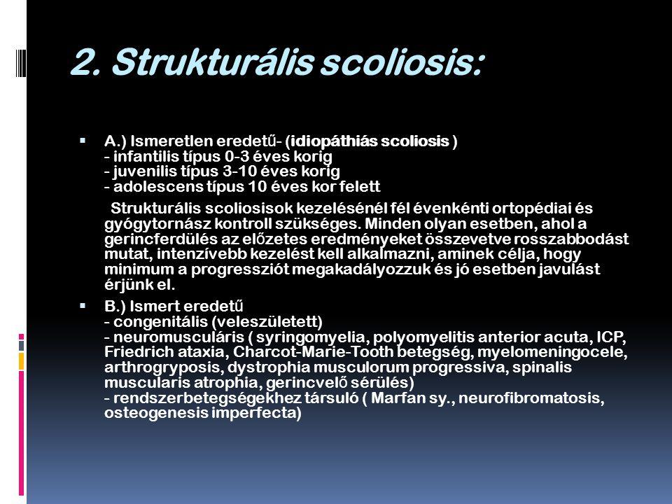 2. Strukturális scoliosis: