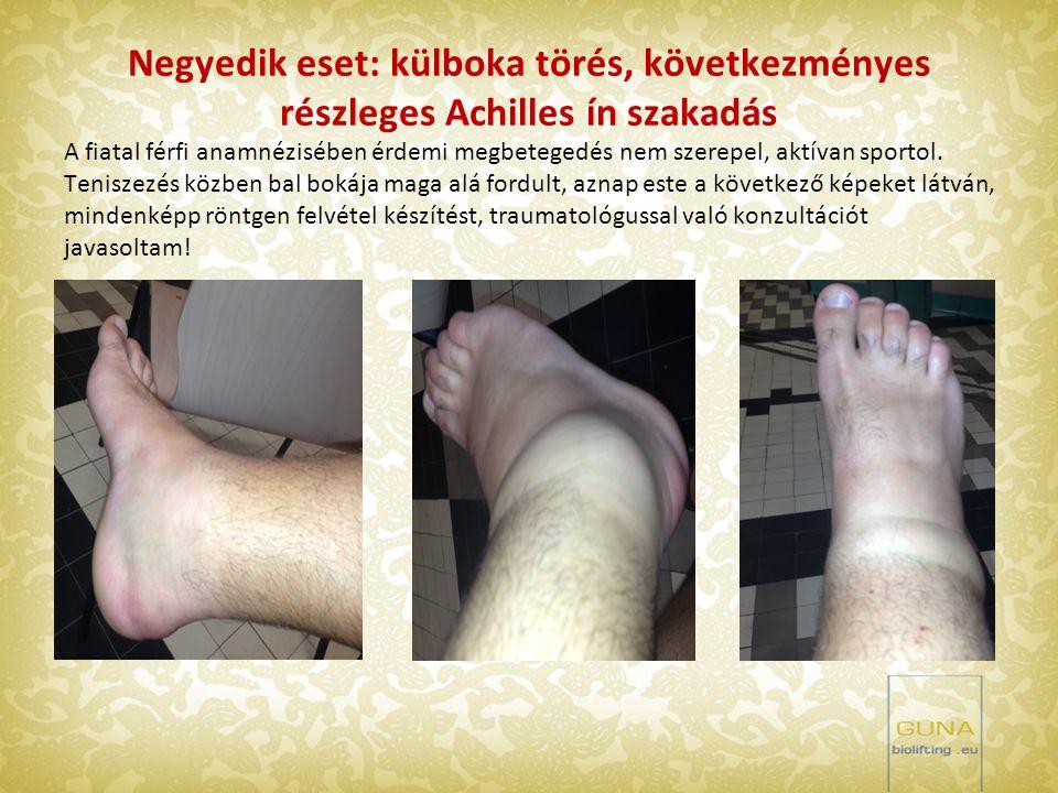 Negyedik eset: külboka törés, következményes részleges Achilles ín szakadás