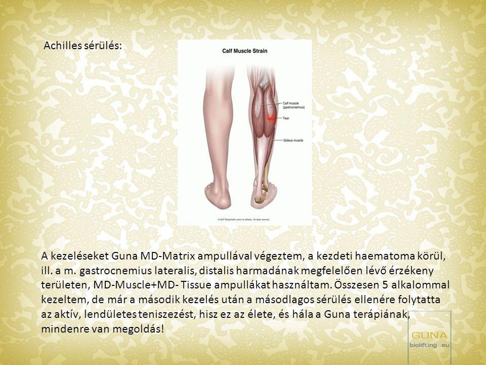 Achilles sérülés: