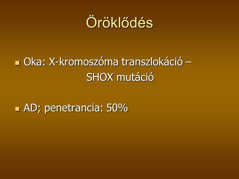 Öröklődés Oka: X-kromoszóma transzlokáció – SHOX mutáció