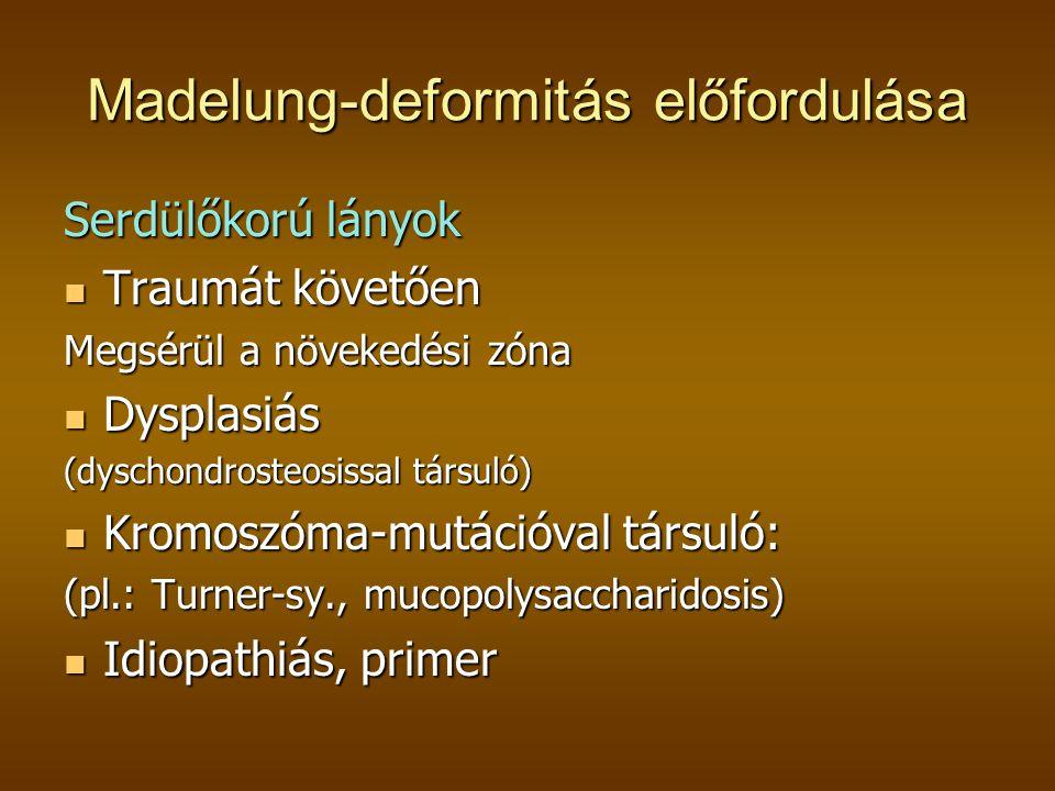 Madelung-deformitás előfordulása