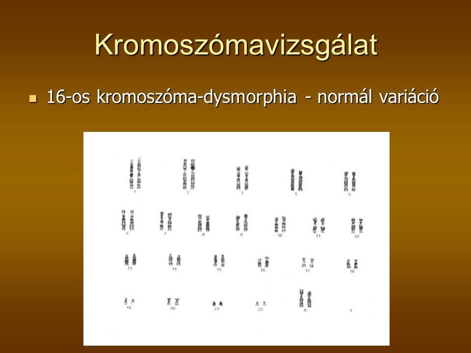 Kromoszómavizsgálat 16-os kromoszóma-dysmorphia - normál variáció