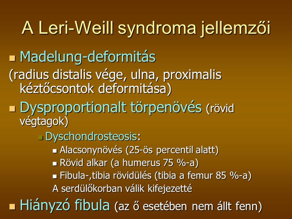 A Leri-Weill syndroma jellemzői