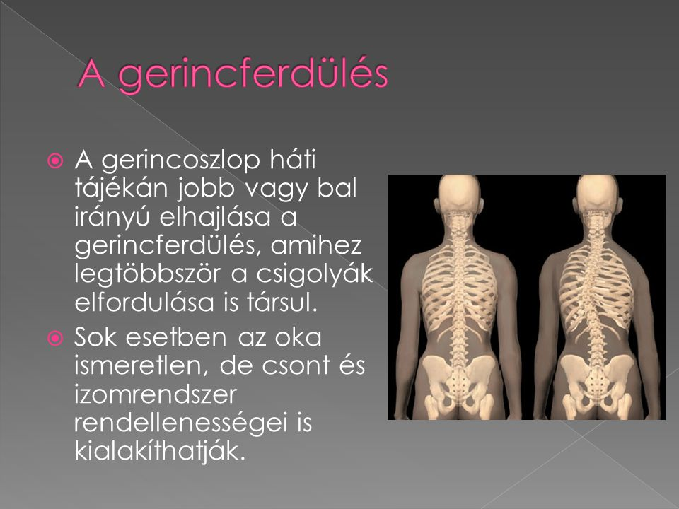 A gerincferdülés A gerincoszlop háti tájékán jobb vagy bal irányú elhajlása a gerincferdülés, amihez legtöbbször a csigolyák elfordulása is társul.