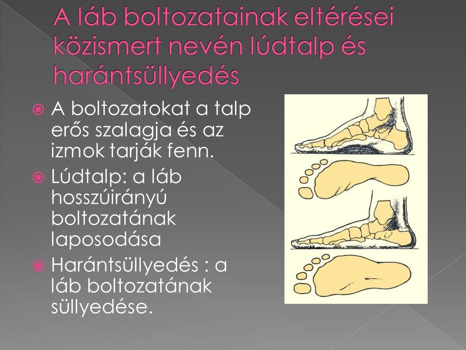 A láb boltozatainak eltérései közismert nevén lúdtalp és harántsüllyedés