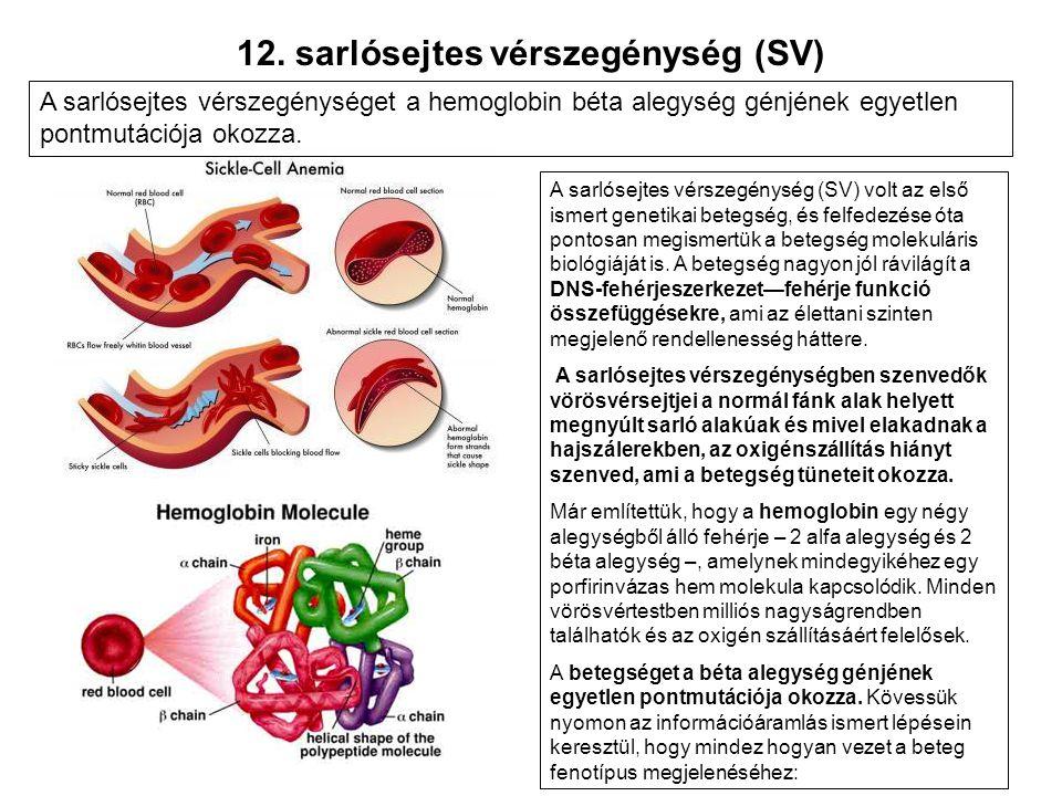 12. sarlósejtes vérszegénység (SV)