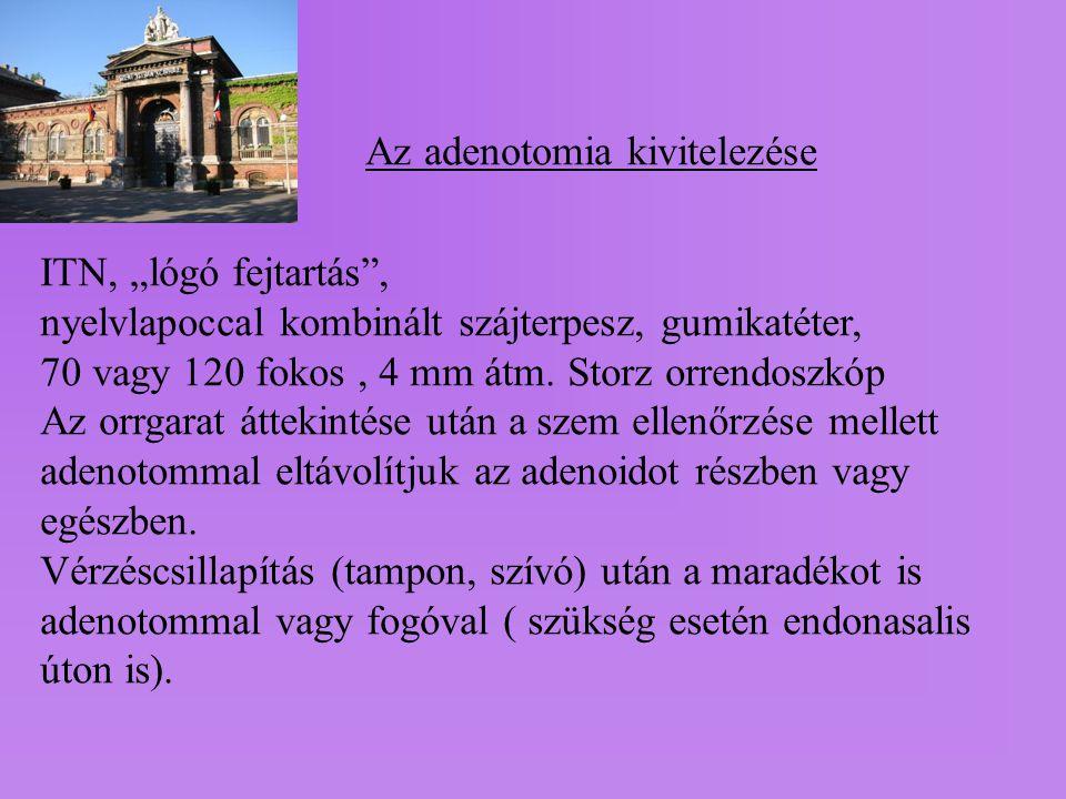 Az adenotomia kivitelezése