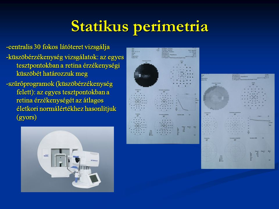 Statikus perimetria -centralis 30 fokos látóteret vizsgálja