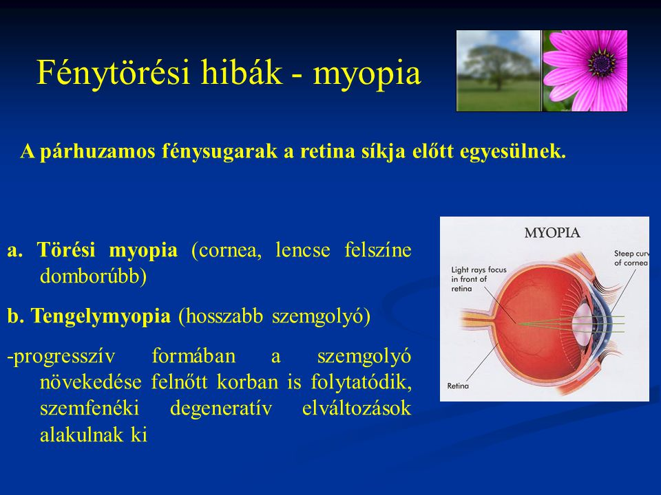 Fénytörési hibák - myopia