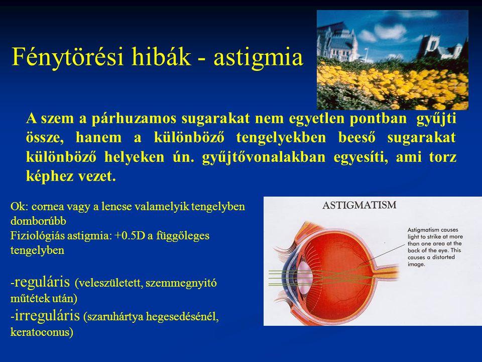Fénytörési hibák - astigmia