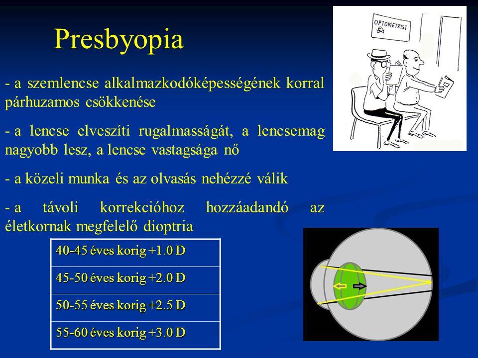 Presbyopia a szemlencse alkalmazkodóképességének korral párhuzamos csökkenése.