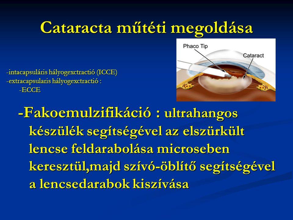 Cataracta műtéti megoldása