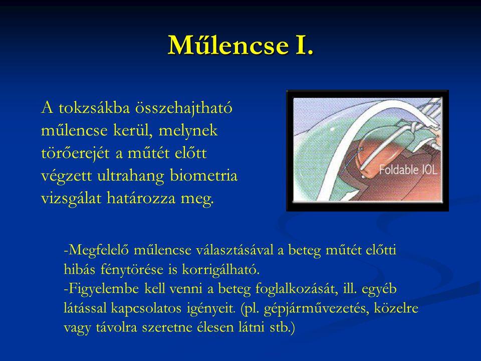 Műlencse I. A tokzsákba összehajtható műlencse kerül, melynek törőerejét a műtét előtt végzett ultrahang biometria vizsgálat határozza meg.
