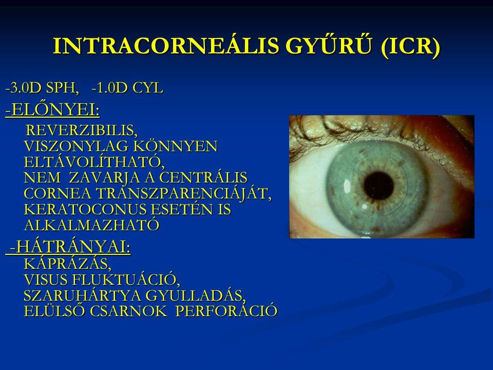 INTRACORNEÁLIS GYŰRŰ (ICR)
