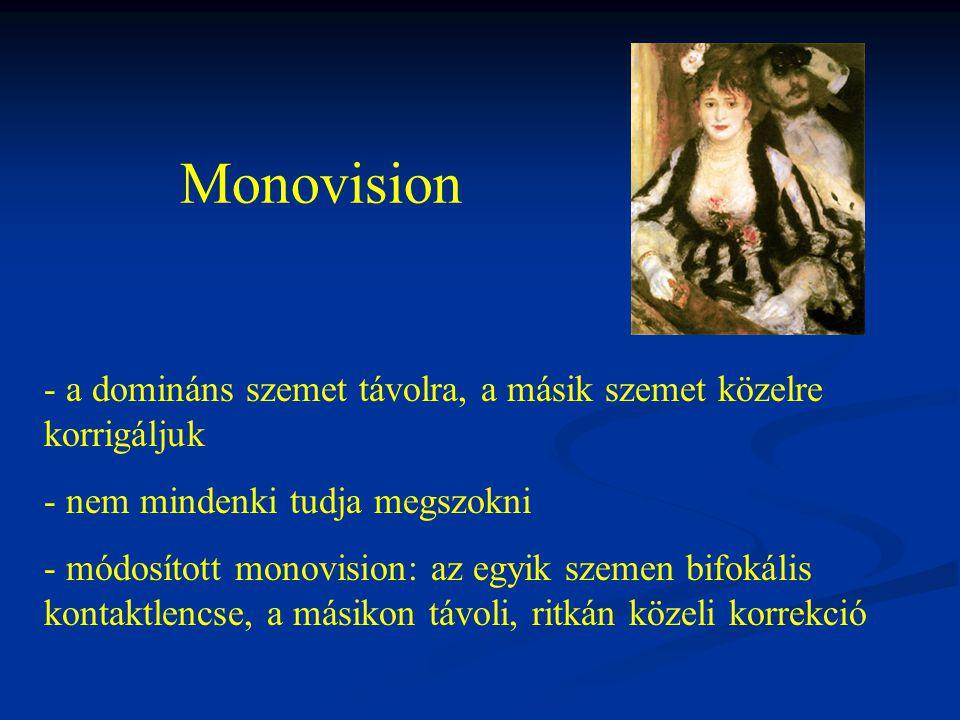 Monovision a domináns szemet távolra, a másik szemet közelre korrigáljuk. nem mindenki tudja megszokni.