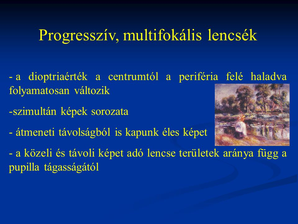 Progresszív, multifokális lencsék