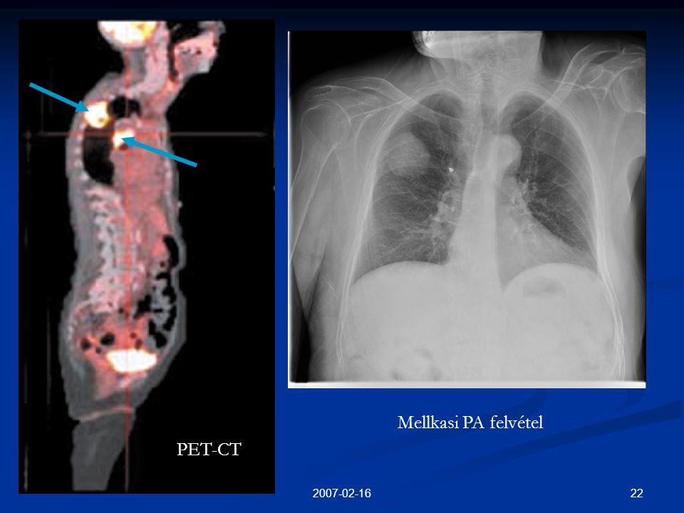 Mellkasi PA felvétel PET-CT 2007-02-16