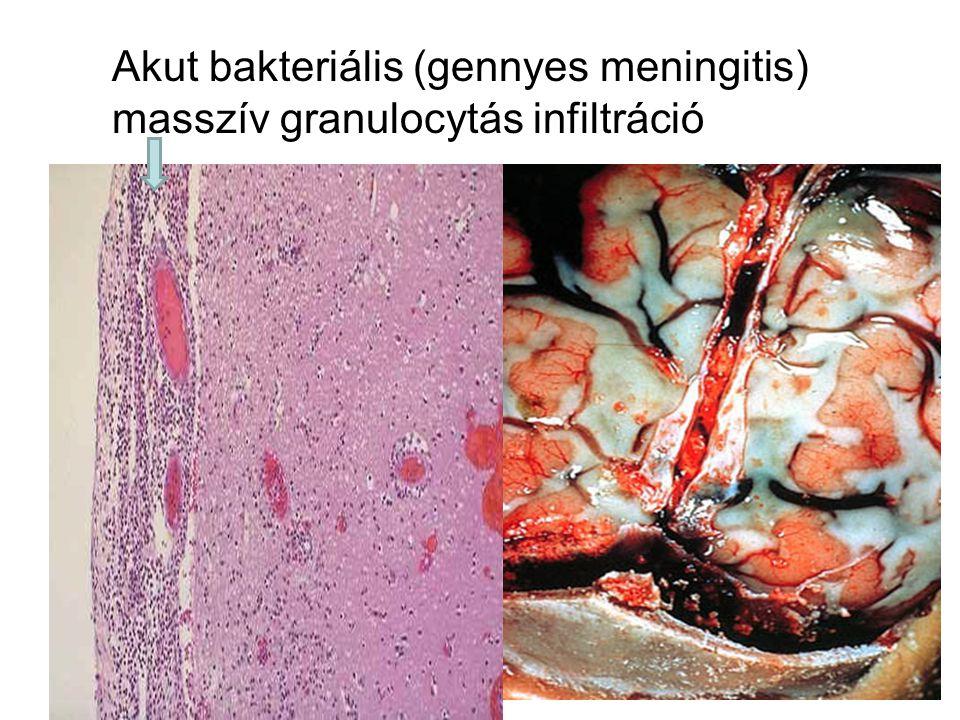 Akut bakteriális (gennyes meningitis)