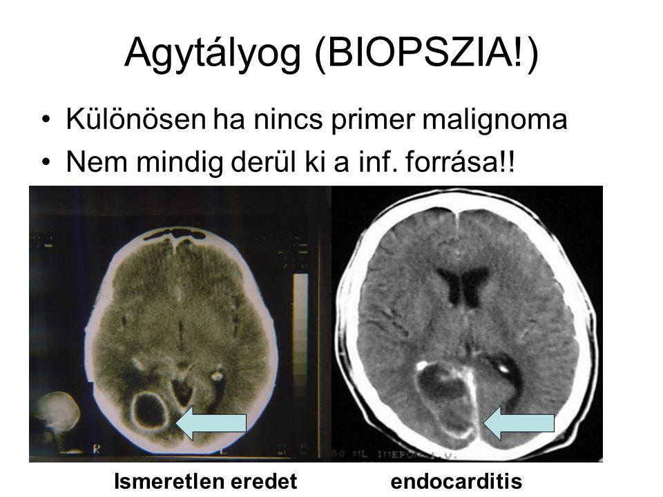 Agytályog (BIOPSZIA!) Különösen ha nincs primer malignoma