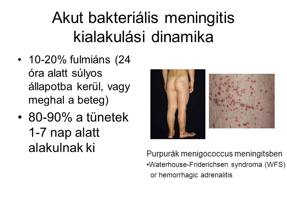 Akut bakteriális meningitis kialakulási dinamika