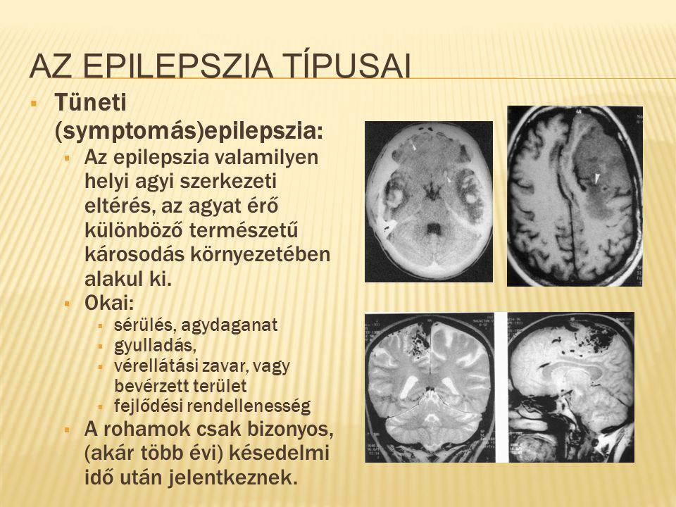 Az epilepszia típusai Tüneti (symptomás)epilepszia: