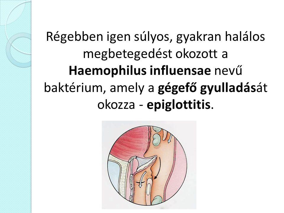 Régebben igen súlyos, gyakran halálos megbetegedést okozott a Haemophilus influensae nevű baktérium, amely a gégefő gyulladását okozza - epiglottitis.
