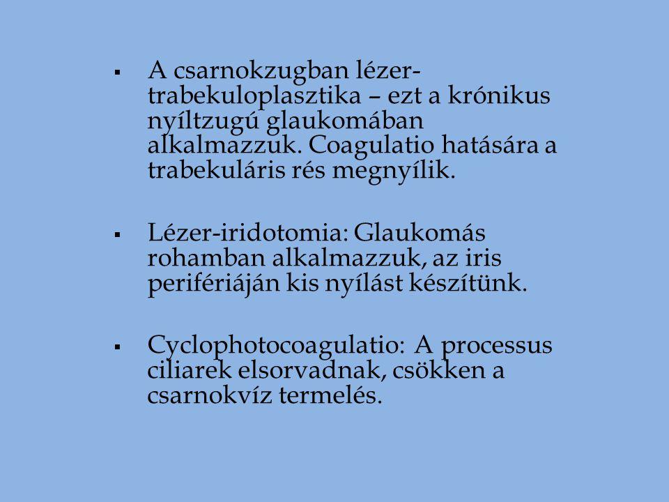 A csarnokzugban lézer-trabekuloplasztika – ezt a krónikus nyíltzugú glaukomában alkalmazzuk. Coagulatio hatására a trabekuláris rés megnyílik.