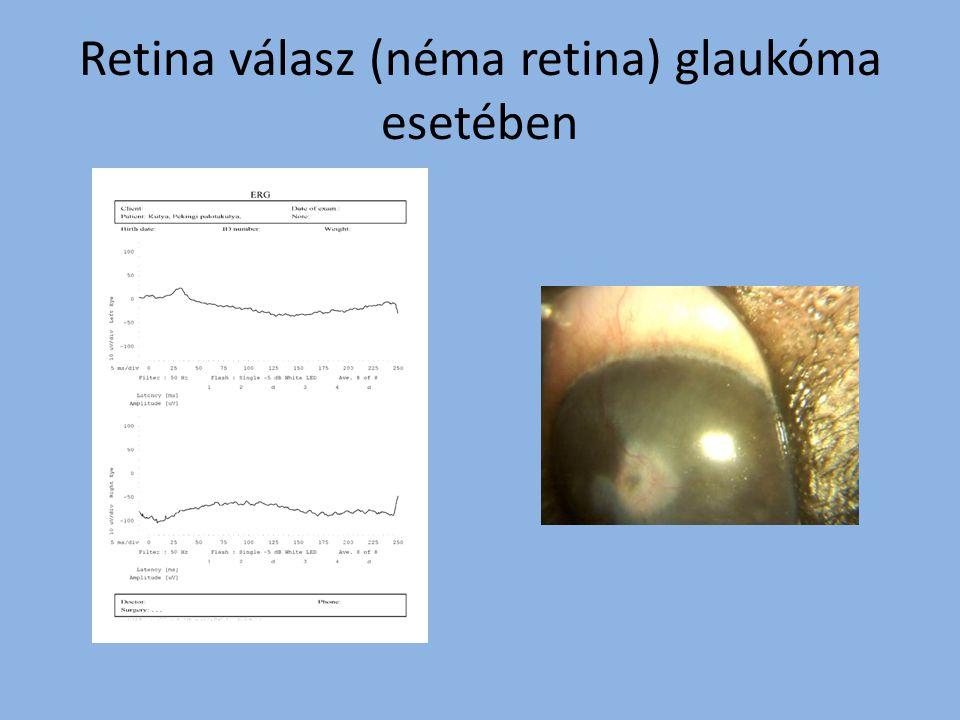 Retina válasz (néma retina) glaukóma esetében