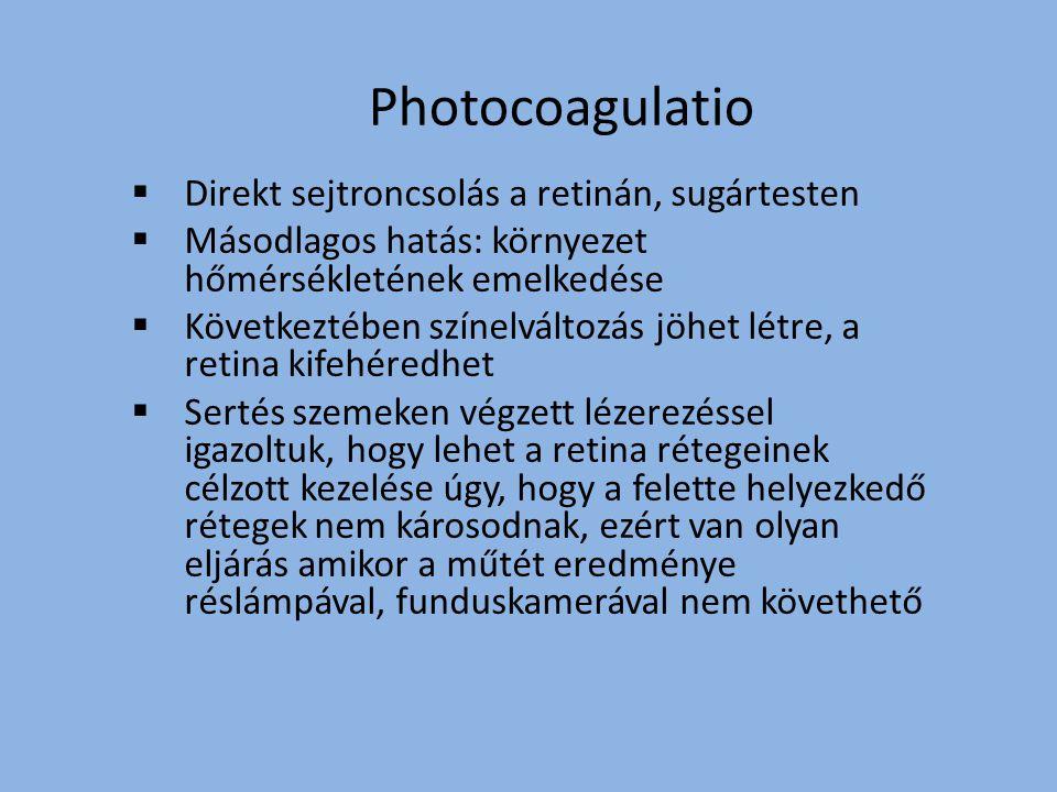 Photocoagulatio Direkt sejtroncsolás a retinán, sugártesten