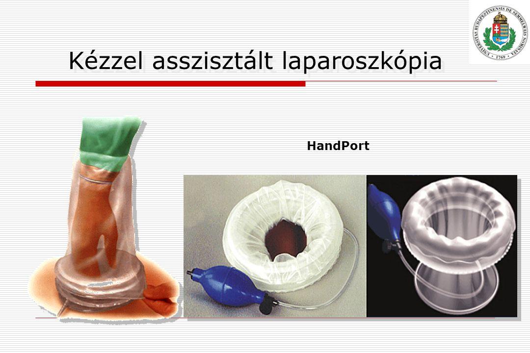 Kézzel asszisztált laparoszkópia