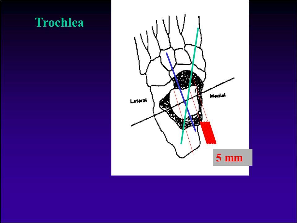 Trochlea 5 mm