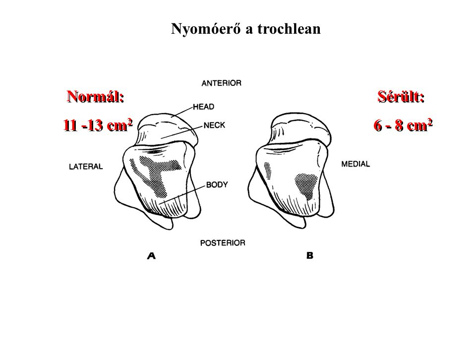 Nyomóerő a trochlean Normál: 11 -13 cm2 Sérült: 6 - 8 cm2