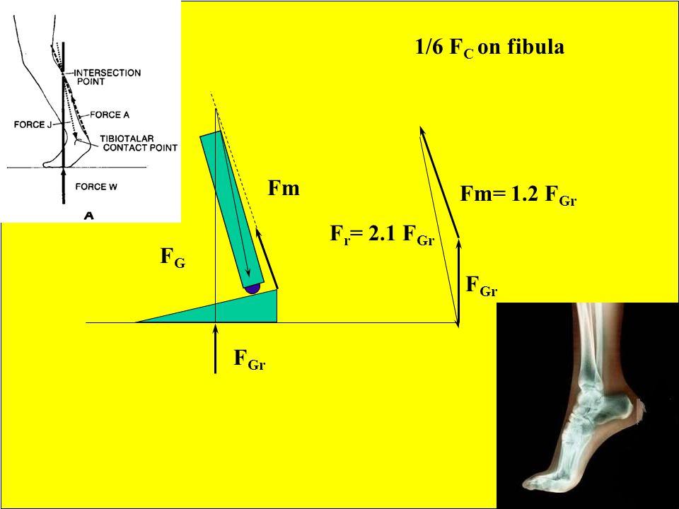 1/6 FC on fibula Fm Fm= 1.2 FGr Fr= 2.1 FGr FG FGr FGr