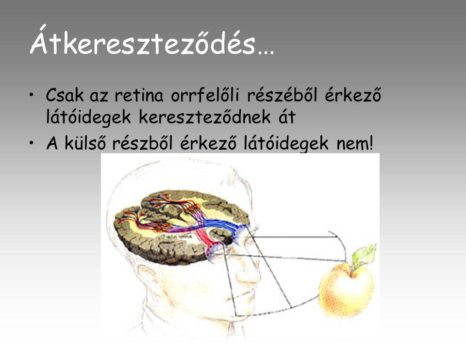 Átkereszteződés… Csak az retina orrfelőli részéből érkező látóidegek kereszteződnek át.