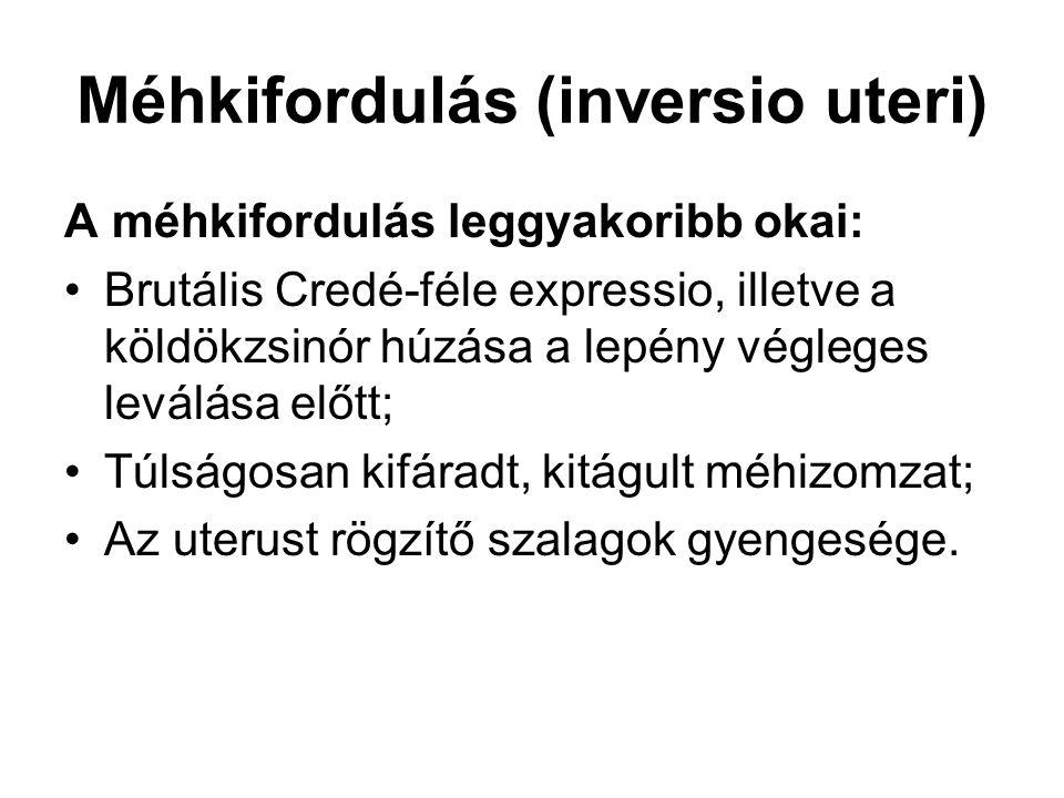 Méhkifordulás (inversio uteri)