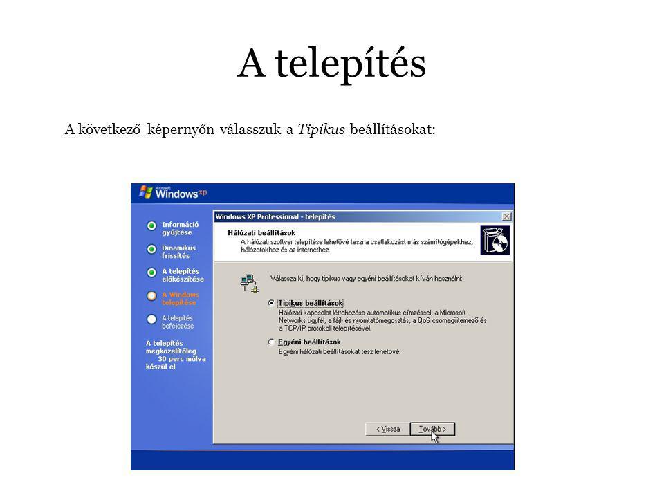A telepítés A következő képernyőn válasszuk a Tipikus beállításokat: