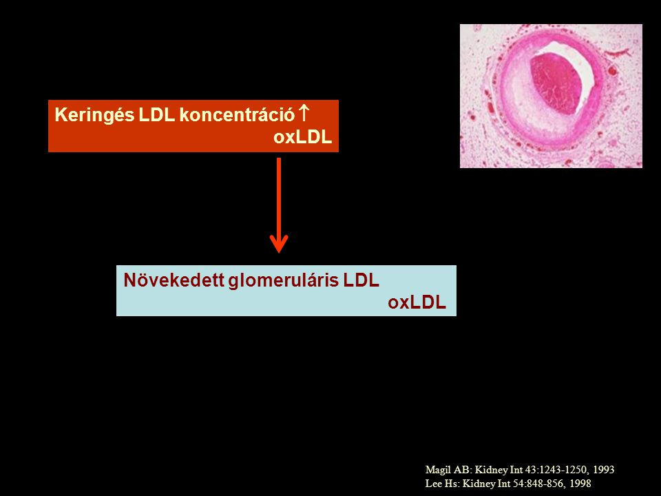 Keringés LDL koncentráció  oxLDL
